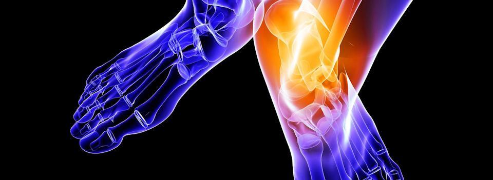 osteoarthritis-7248698_m-1