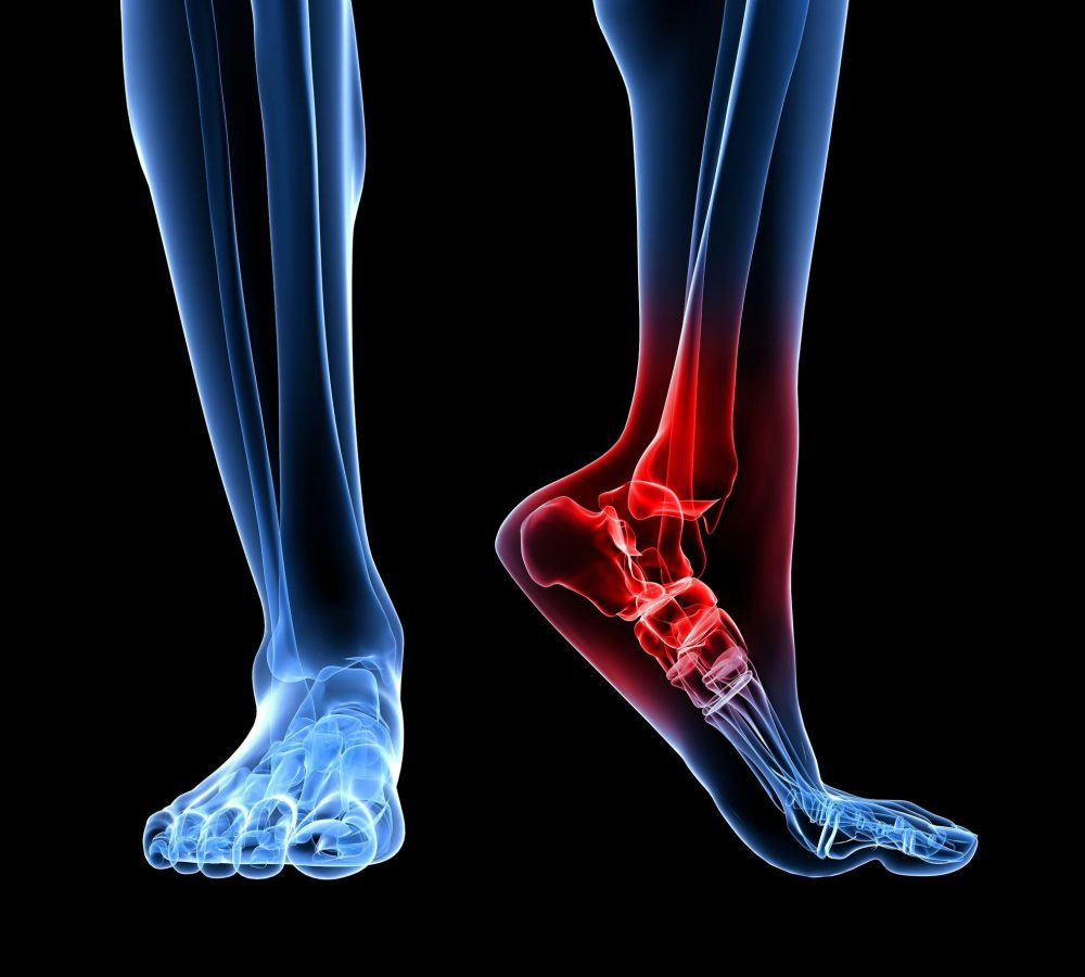 7248682 - skeletal foot with highlighted ankle